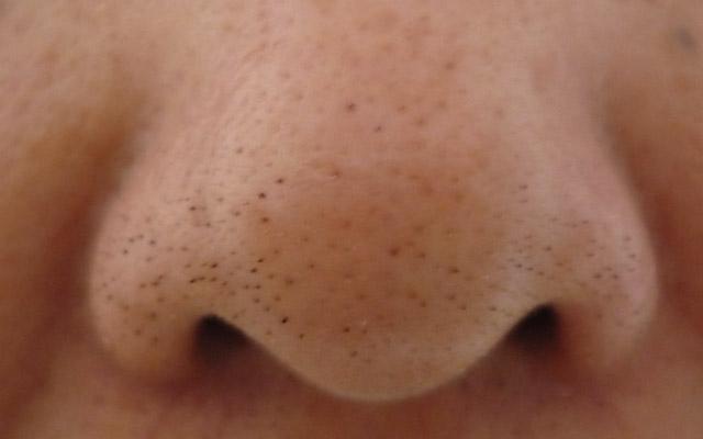 Miteseri na nosu